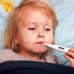 Двойно са се увеличили болните от варицела за седмица