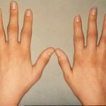 Безплатни прегледи за ревматоиден артрит организират в Плевен